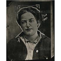 1921 Press Photo Mrs. Fannie Liebowity, victim of hyperthyroidism