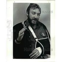 1985 Press Photo: Brian R. Carson - Stuntman with broken arm  - cvb67396