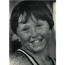 1983 Press Photo Dewey Coerper, first in a freckles contest Wisconsin State Fair