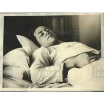 1929 Press Photo Charles Howe at Johns Hopkins Hospital After Nose Surgery
