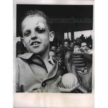 1961 Press Photo Ed Siko of Kent, Black eye from Cleveland-Minnesota baseball