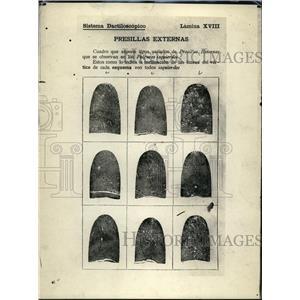 1914 Press Photo various Fingerprints of what is called Vucrtich external body