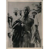 1931 Press Photo Rebel prisoner in Burma with wound in head & shoulder