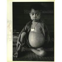 1979 Press Photo Laos refugee suffers from parasites & malnutrition in Thailand