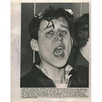 1964 Press Photo Man hurt in demonistration struggle - RRT64155