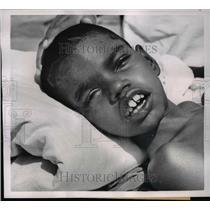 1954 Press Photo Ramu Lucknow's 'Wolf Boy'